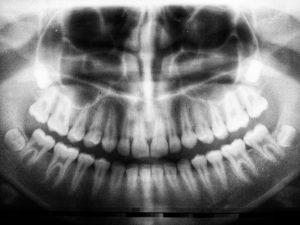 Digital imaging in endodontics